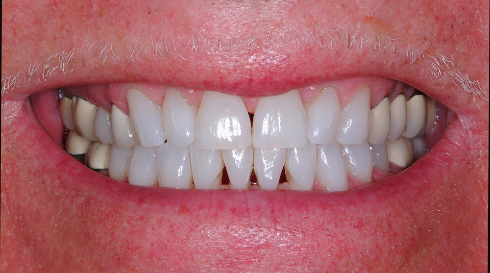 What causes dark triangles between teeth? — Impressions Orthodontics